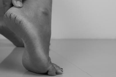 Jak ošetřit popraskané paty?